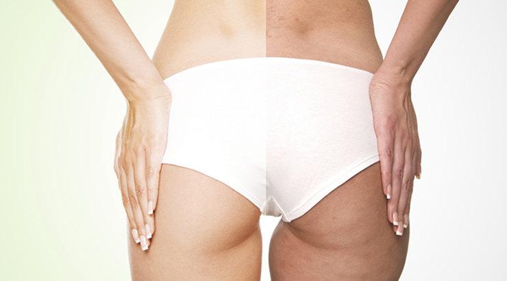 Сыворотка для лица и тела Cellulite reducer 10 мл Q-Lab Испания